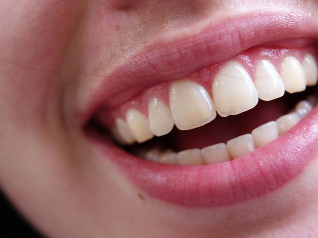 white-teeth-dentist-in-wirral